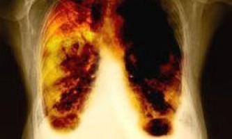10 Самих смертельних видів раку і чому вони не лікуються