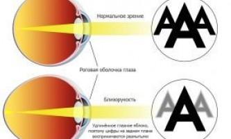 Короткозорість (міопія): профілактика (вправи) і лікування