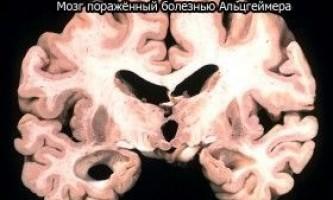 Хвороба альцгеймера в міфах і фактах