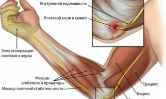 Болить лікоть в суглобі: причини, що робити? Як лікувати?
