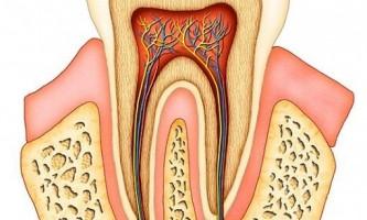 Болить зуб під коронкою: що робити?