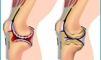 Чим відрізняється артрит від артрозу?