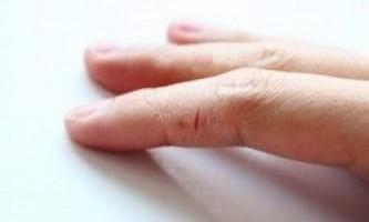 Що робити при тріщинах на шкірі рук