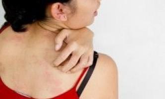 Що таке мастоцітоз