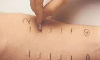 Дерматит - діагностика захворювання