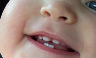 Дитячий карієс - симптоми і методи боротьби з ним