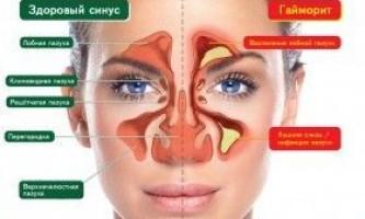 Гайморит гострий і хронічний: симптоми і лікування