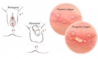 Герпес при вагітності: небезпека, лікування, симптоми