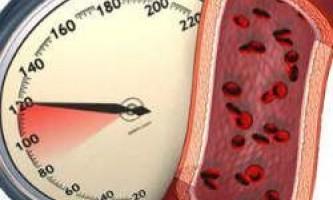 Гіпертонія - який тиск вважається високим?