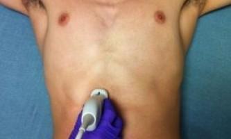 Холецистит: симптоми, лікування і дієта