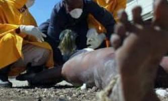 Холера - причини, що призводять до інфекції