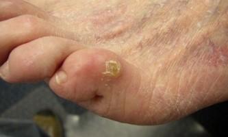 Позбутися натоптишів на пальцях ніг?