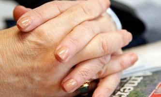 Як позбутися від артриту суглобів пальців рук за допомогою вправ