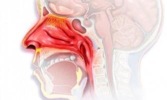 Як позбутися від соплів в горлі?