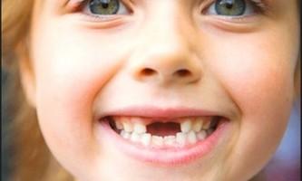 Як відрізнити молочні зуби від корінних зубів?