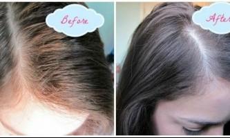 Як користуватися сухим шампунем для волосся?