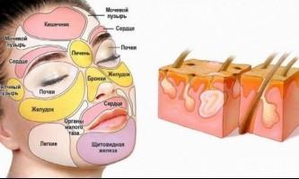 Як прибрати внутрішній прищ на обличчі?