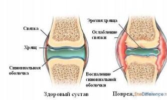 Як вилікувати артрит?