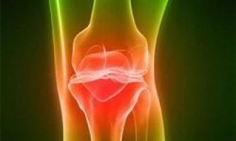 Лікування артрозу суглобів