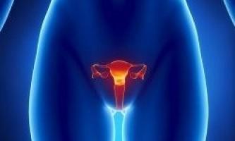 Лікування фіброміоми матки