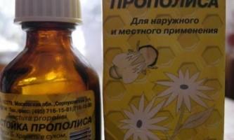 Лікування хронічного тонзиліту