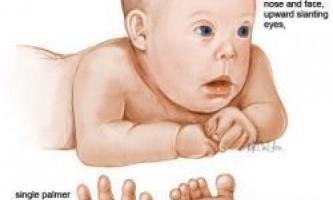 Нові тести з виявлення хвороби дауна в утробі