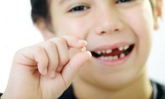 Чи потрібно лікувати молочні зуби?