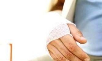 Надання першої допомоги при переломах