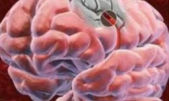 Пухлина головного мозку - загальна інформація