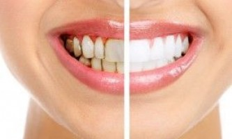 Чому з`являються зубні відкладення, як лікувати?