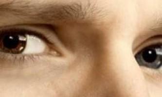 Чому існують люди з різним кольором очей?