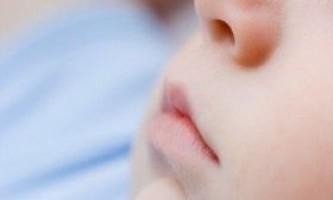 Чому у дитини потріскалися губи?