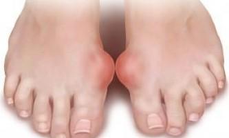 Подагра: причини, симптоми, ознаки та лікування