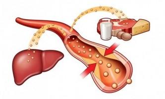 Підвищений холестерин: що робити? Як знизити?