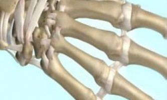 Профілактика остеопорозу за допомогою вітаміну d