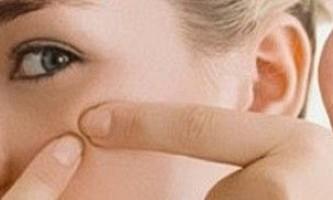 Прищі при вагітності: причини і лікування