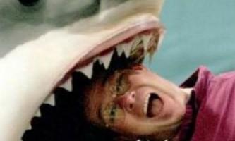 Вчені виявили схожість між мозком акули і людини