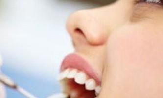 Вчені розробили новий метод лікування зубів без свердління