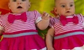 У ірландії народилися близнюки з різницею в 87 днів