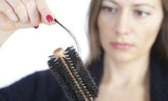 Випадання волосся: причини і медичні поради