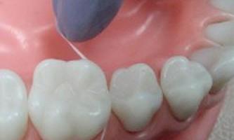 Зубна нитка - марна річ для здоров`я зубів?